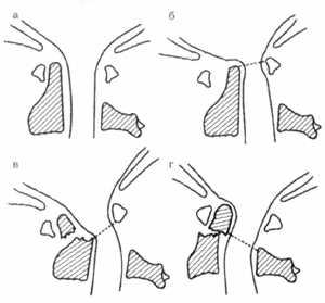 Сустав крювелье череп атлант