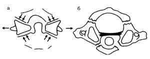 Рис. 1.4. Схема Джефферсона (1960), иллюстрирующая механизм возникновения растрескивающегося перелома
